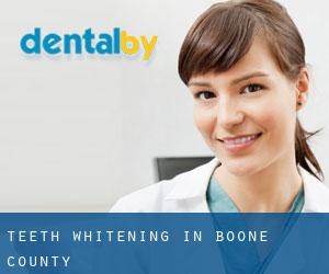 Teeth whitening in Boone County