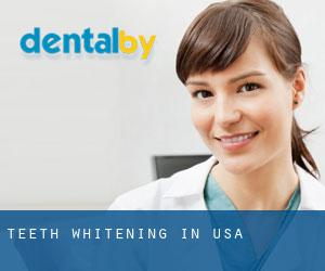 Teeth whitening in USA